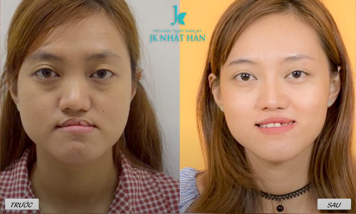 Before After Ngoc Tram